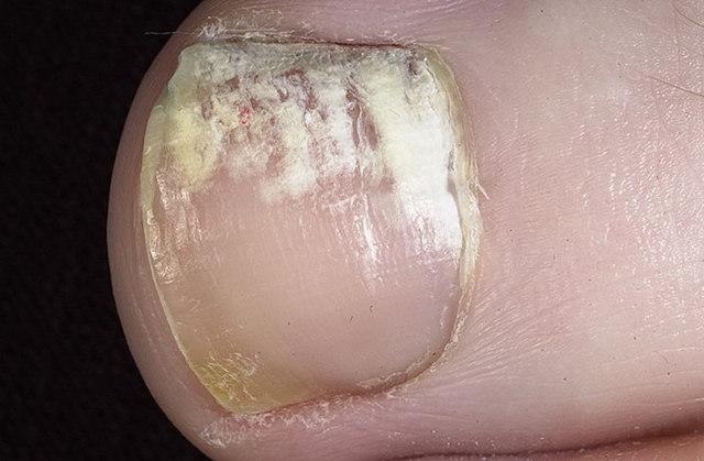 Микоз ногтей: на ногах, руках - лечение, фото, препараты, отзывы, анализ, МКБ 10, таблетки, описание, народные средства, как выглядит