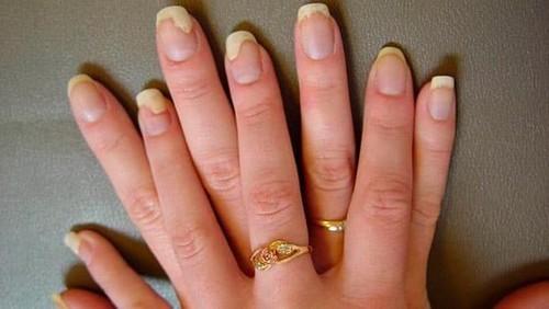 Грибок ногтя на большом пальце руки - причины и лечение