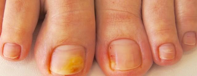 Протезирование ногтей на ногах при грибке Геволем