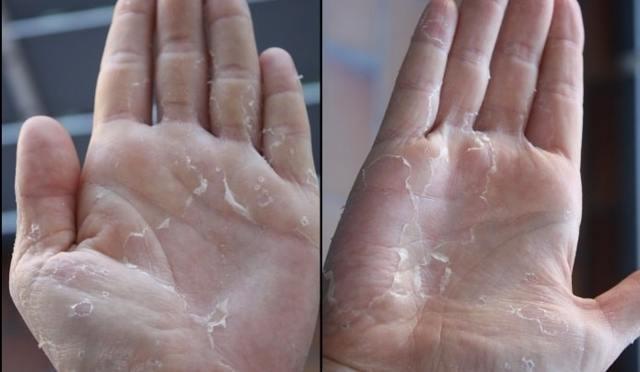 Грибок на ладонях рук - лечение всех стадий грибка