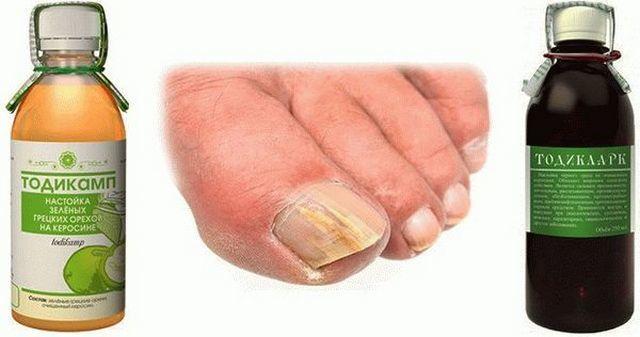 Керосин от грибка ногтей
