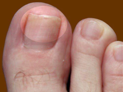 Грибок ногтя на большом пальце: лечение, отзывы, фото, как выглядит, начальная стадия, удаление, симптомы, средства, причины
