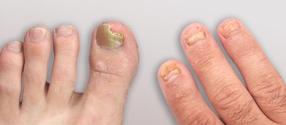 Уксус и глицерин от грибка ногтей - инструкция и отзывы