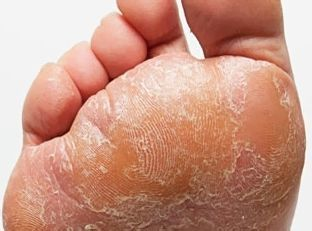 Везикулярный грибок стопы - формы и лечение