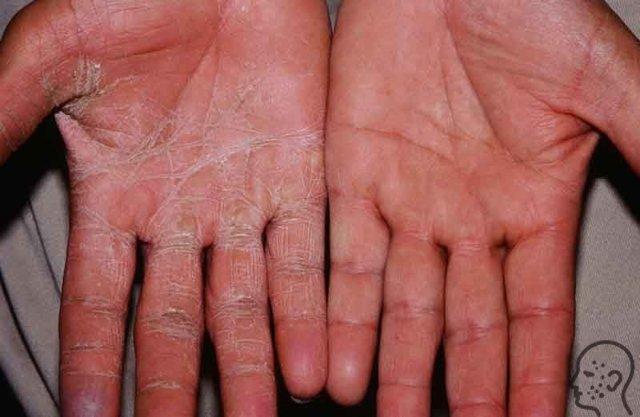 Грибок кистей рук: фото, лечение, симптомы, пути заражения, отзывы