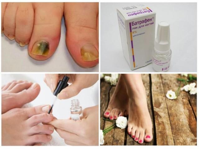 Батрафен лак от грибка ногтей: инструкция, цена и отзывы