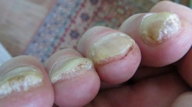 Как отличить грибок ногтей