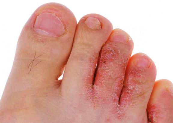 Грибок между пальцами ног - лечение народными средствами