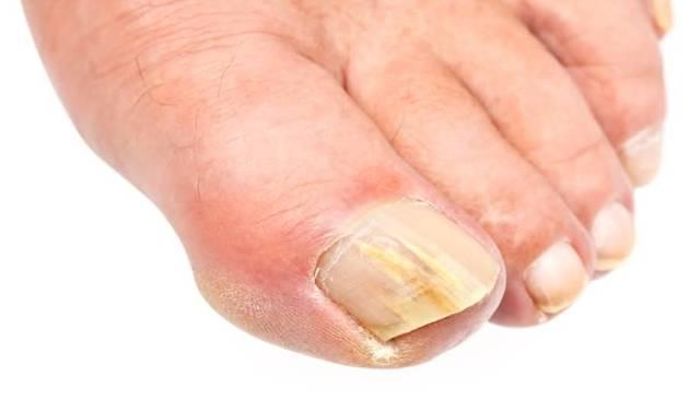 Дрожжевой грибок ногтей на ногах: причины, симптомы и лечение