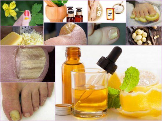 Грибок ногтя на большом пальце: показания к удалению ногтевой пластины, симптомы и причины заболевания, средства лечения и профилактики