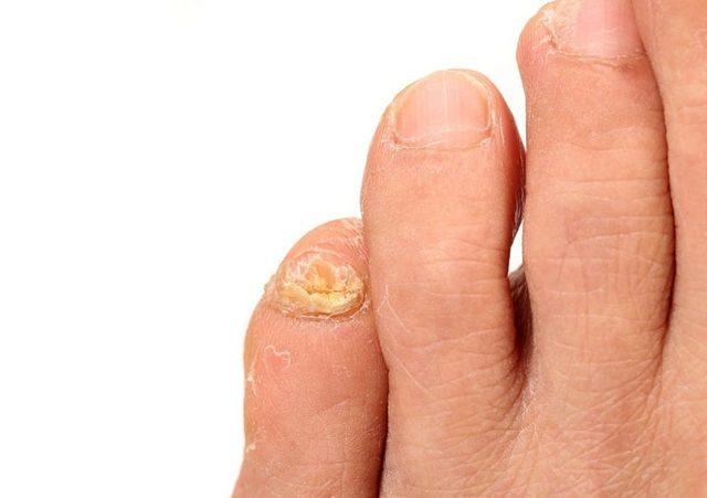 Грибок на мизинце ноги: фото, причины, диагностика, лечение, отзывы