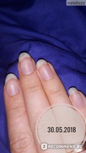 КАНДИД от грибка ногтей - инструкция по применению, цена, отзывы и аналоги