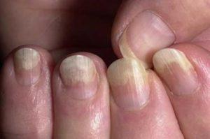 Диета при грибке ногтей - что нужно и нельзя есть