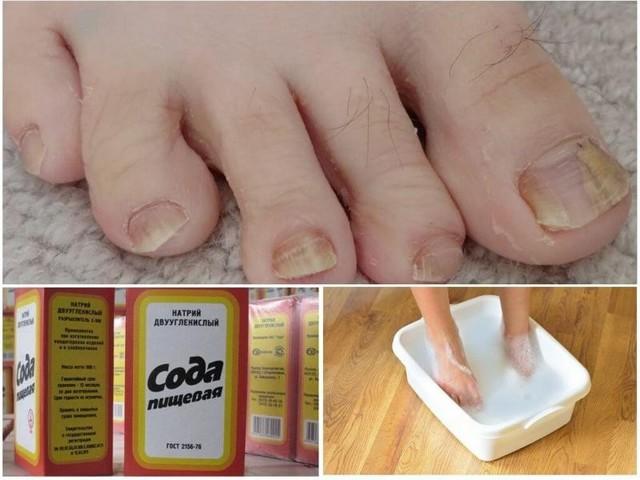Сода от грибка ногтей на ногах: лечение, отзывы
