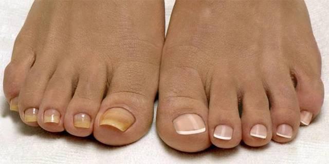 Лечение грибка ногтей в домашних условиях ног и рук: народные средства (уксус, сода, перекись, прополис, чеснок), отзывы, эффективные методы