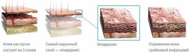 Препараты от грибка стопы: эффективные, недорогие, лучшие - лечение, отзывы, цены, обзор, профилактика