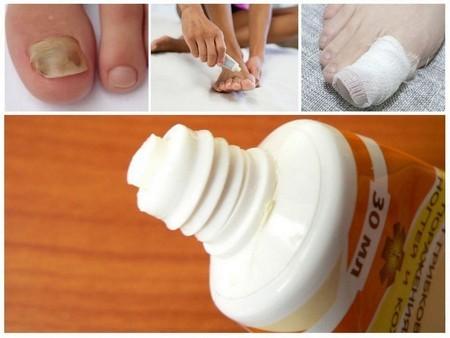 Фундизол от грибка ногтей: инструкция и отзывы