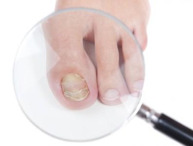 Мыльно содовые ванночки для ног при грибке: инструкция и отзывы