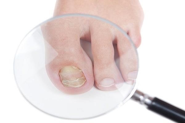 Березовый деготь от грибка ногтей: особенности лечения и отзывы