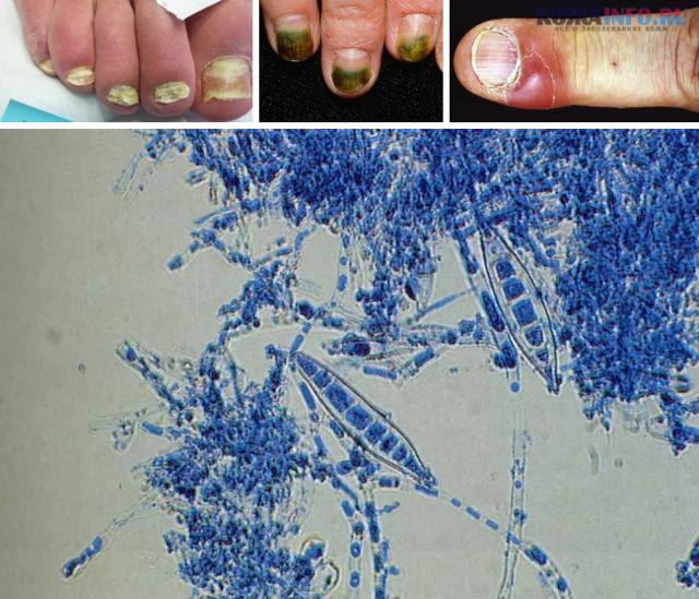 Уксусная эссенция от грибка ногтей: лечение, отзывы, рецепты (с яйцом), компрессы, мази, ванночки