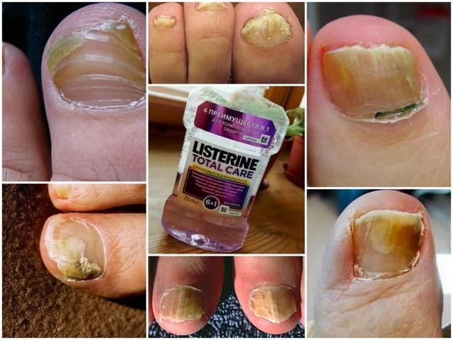 Листерин от грибка ногтей: инструкция, цена и отзывы