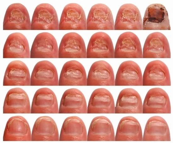 Йодинол от грибка ногтей - способы лечения и отзывы