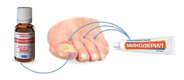МИКОДЕРИЛ от грибка ногтей - инструкция, цена и отзывы