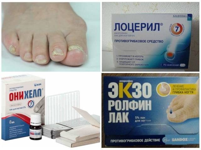 ОФЛАМИЛАК от грибка ногтей - инструкция, цена и отзывы