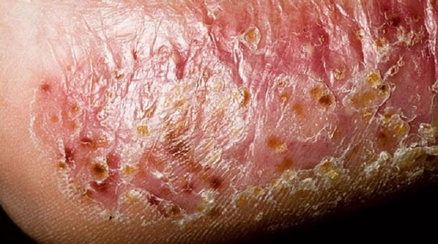 Дисгидротическая форма грибка стопы - симптомы и лечение