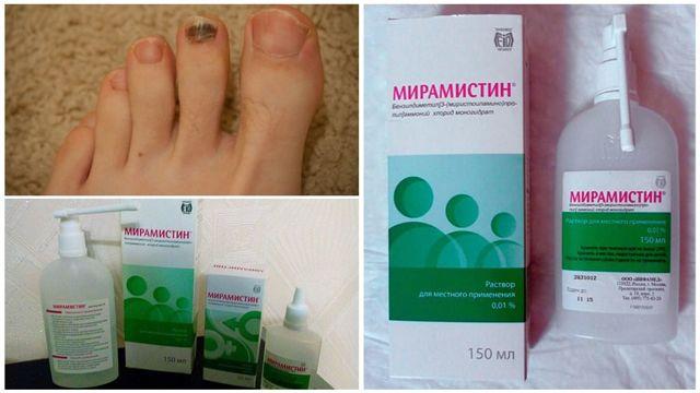 Мирамистин от грибка ногтей - инструкция по применению, цена