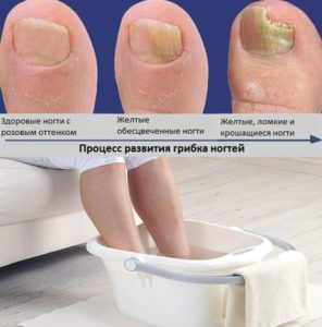 Цитросепт при грибке ногтей: свойства и форма выпуска