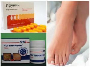Средство от грибка ногтей на руках: эффективные и недорогие препараты, народные методы