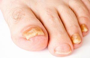 Гипертрофический онихомикоз ногтей: фото, лечение, симптомы, причины, виды