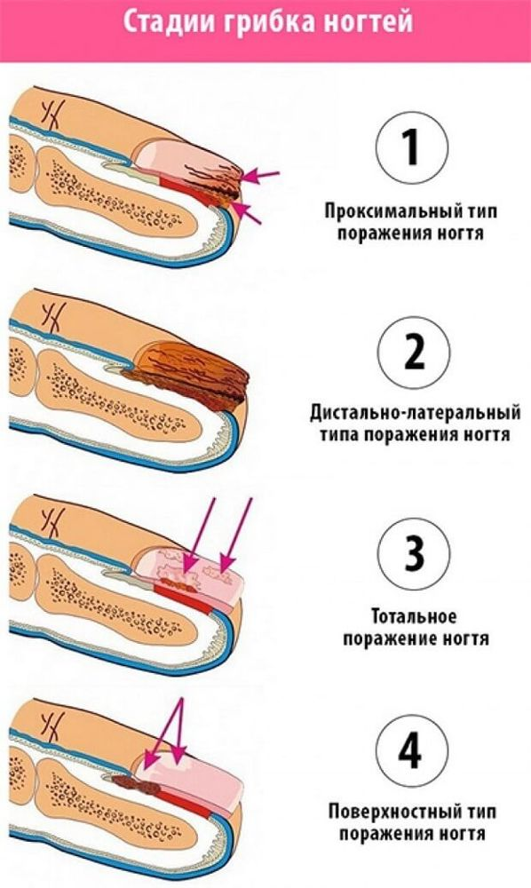 Лечение грибка на ногах народными средствами в домашних условиях