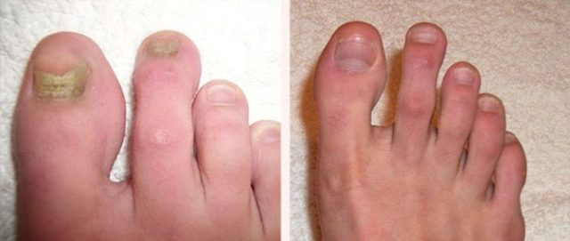 Офламилак от грибка ногтей: инструкция по примнению