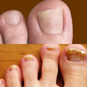 Клотримазол раствор от грибка ногтей - инструкция и отзывы