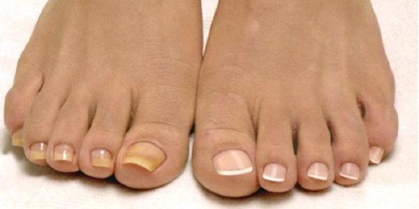 Мазь от грибка ногтей на руках и ногах - обзор лучших