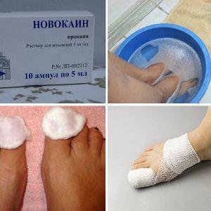 Новокаин от грибка ногтей - инструкция как лечить и отзывы