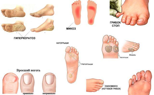 Грибок ногтя у ребенка - симптомы, причины и лечение