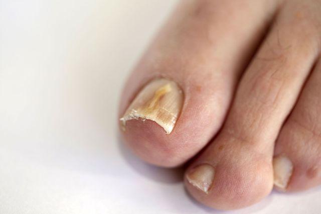 Ванночки от грибка ногтей на ногах - самые лучшие это..