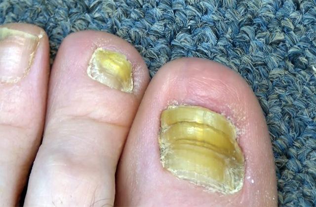 Грибок ногтей - как передается и заразен ли он?