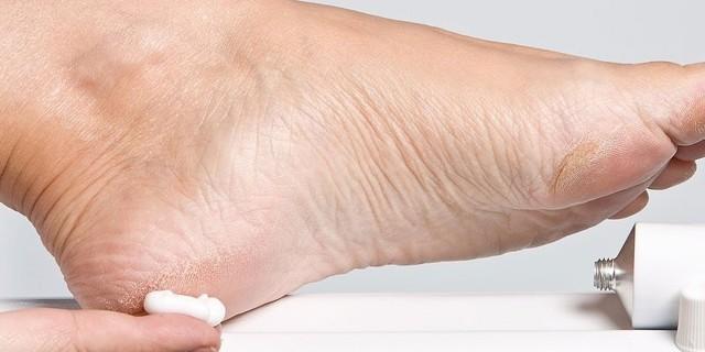 Цинковая мазь от грибка на ногах - инструкция, цена и отзывы