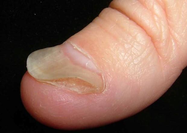 Как отличить грибок ногтей от псориаза ногтей? Главные отл..