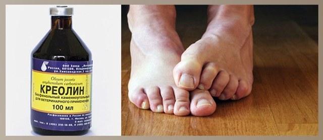 Креолин от грибка ногтей на ногах и руках: инструкция и отзывы