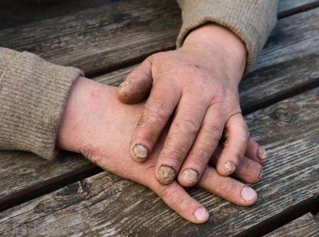 Анализ на грибок ногтей (гемотест): как и где сдать, цена, как берут, сколько делается
