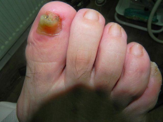 Дифлюкан от грибка ногтей - инструкция по применению, цена, отзывы