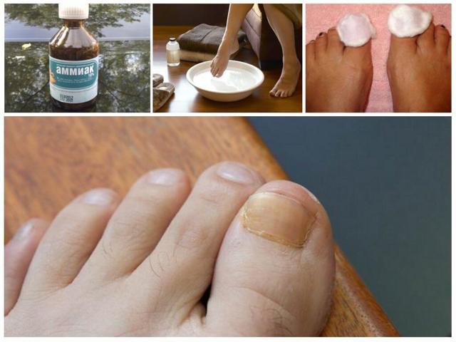 Какой врач лечит грибок ногтей на ногах: миколог, дерматолог, к кому обратиться?