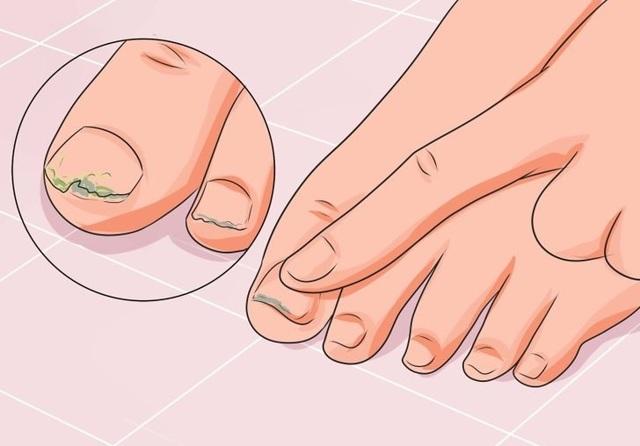 Капли от грибка на ногах: название лучших и недорогих капель, инструкция, цена, отзывы