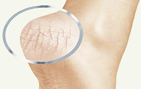 Салициловая мазь от грибка стопы - инструкция по применению, отзывы