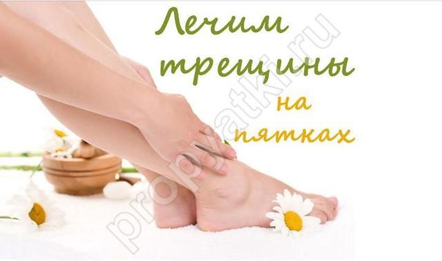 Крем от трещин на пятках: Шоль для ног в аптеке, отзывы на лучшее средство, мазь Лекарь с мочевиной, салициловая с заживляющим